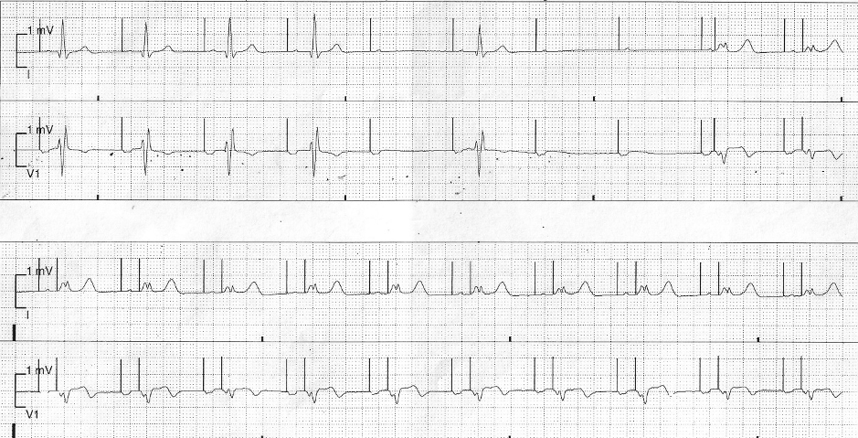 Bradycardia on Telemetry Following a Pacemaker Implant