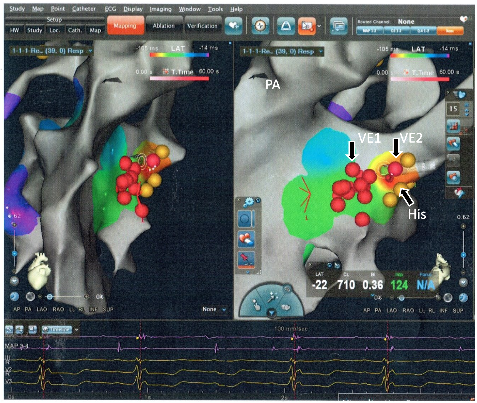 Ablation of RV Outflow Tract Ectopic Originating Close to the His Bundle