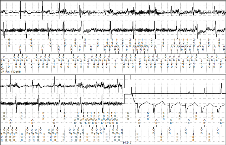 ICD Shock Therapy: What Is The Cause?