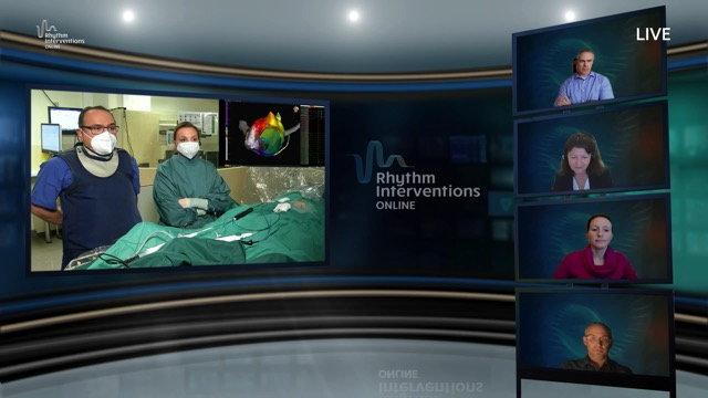 Live Case & Discussion – Ablation Technology