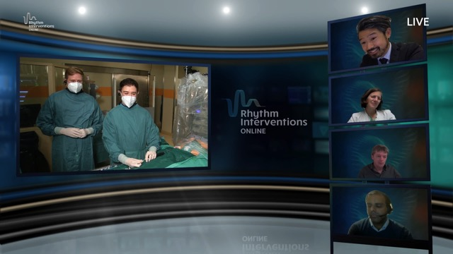 Live Case & Discussion – High Power RF Ablation