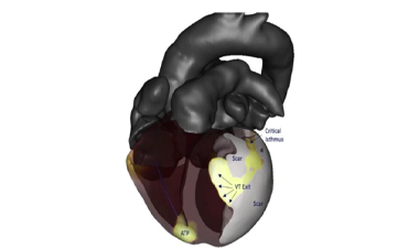 Latest Evidence in ICD Therapy and New Technologies in AF Ablation