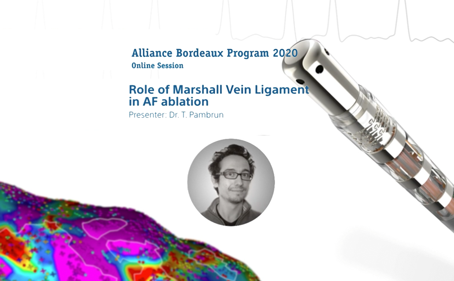 The Role of the Marshall Vein Ligament in AF Ablation