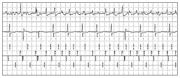 Ventricular Sensing Episode: What is the Rhythm?